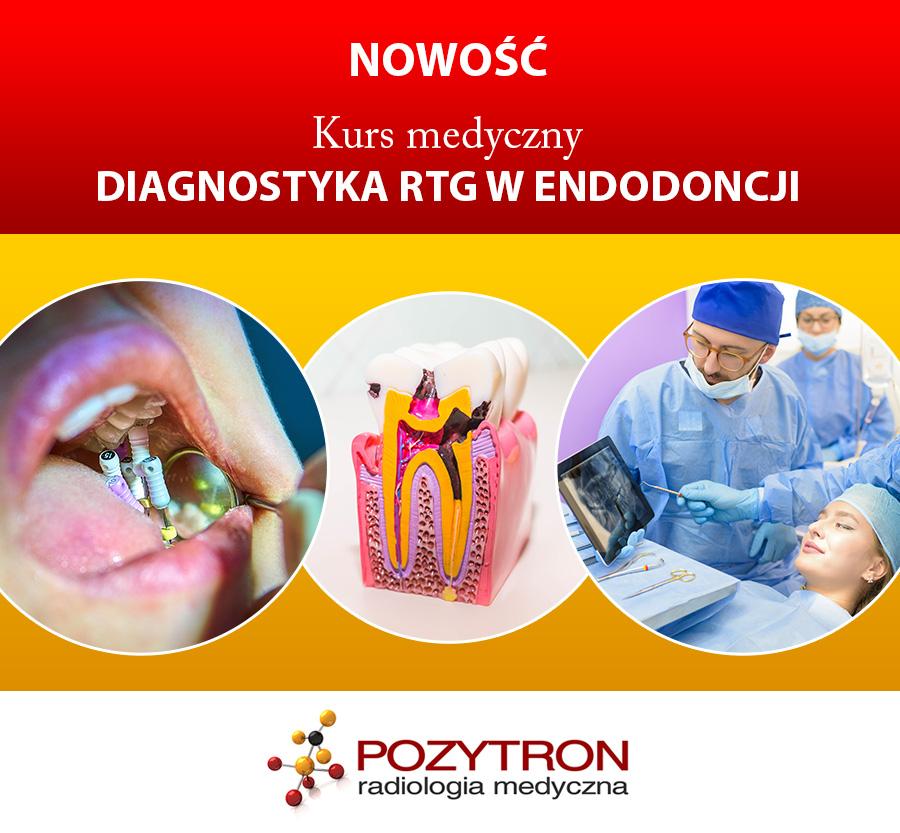 Diagnostyka RTG w endodoncji